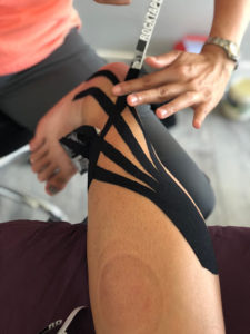 K-tape for swelling after ankle sprain